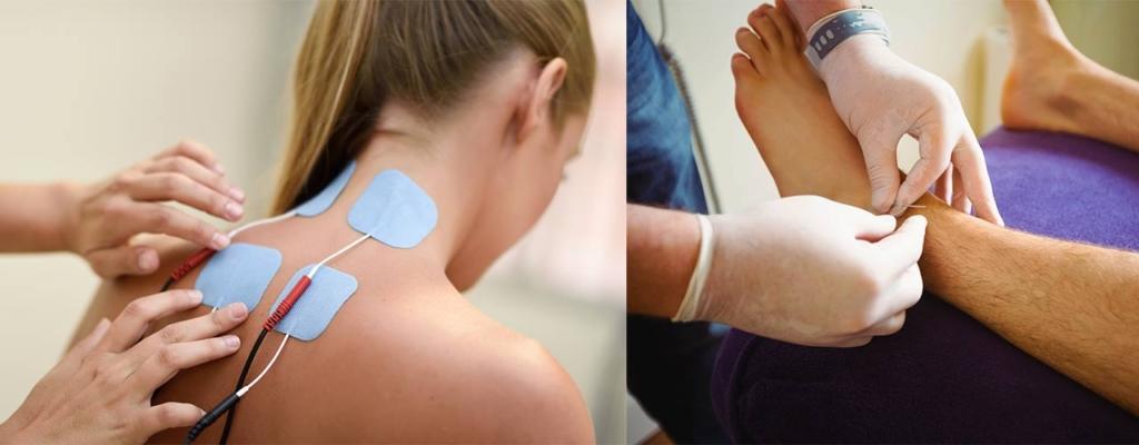 MotionDynamix Physiotherapie Egg Electrobehandlung u. Dryneedling